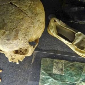 Skull_and_Belongings_of_Genocide_Victims_-_Genocide_Memorial_Center_-_Kigali_-_Rwanda